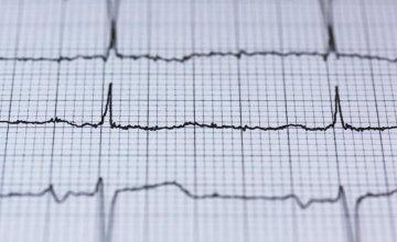 Kako smiriti aritmiju srca?