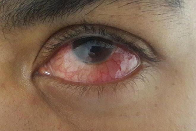 turbekuloza oka1