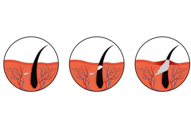 Ducray Keracnyl akne stadiji