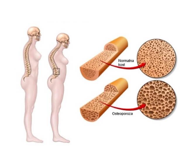 osteoporoza vs. normalna kost