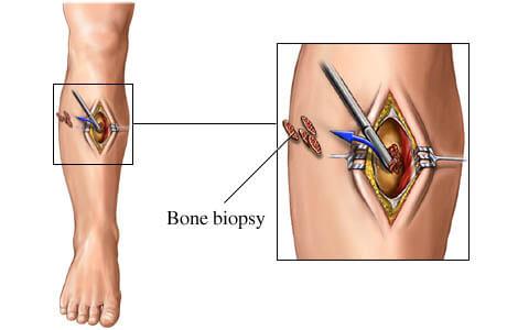 otvorena biopsija