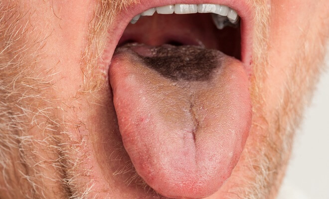 Dlakavi jezik