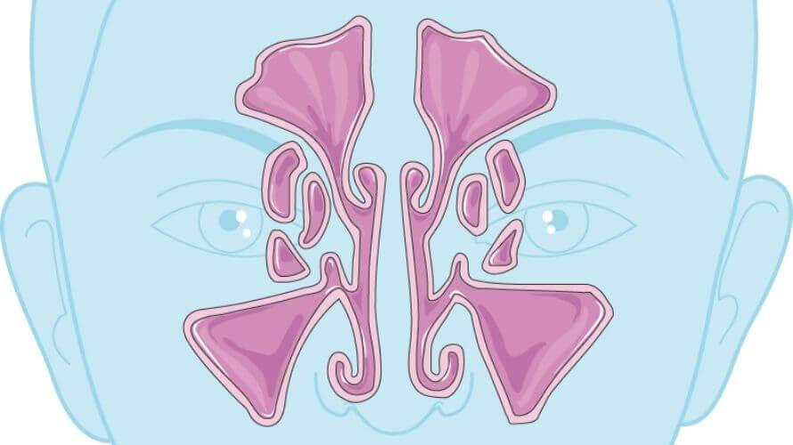 Maksilarni sinus