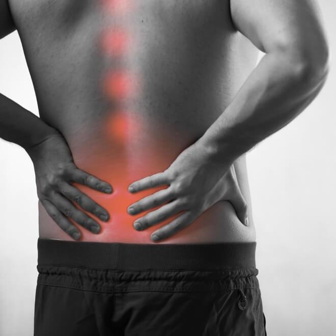 Istegnuće u leđima