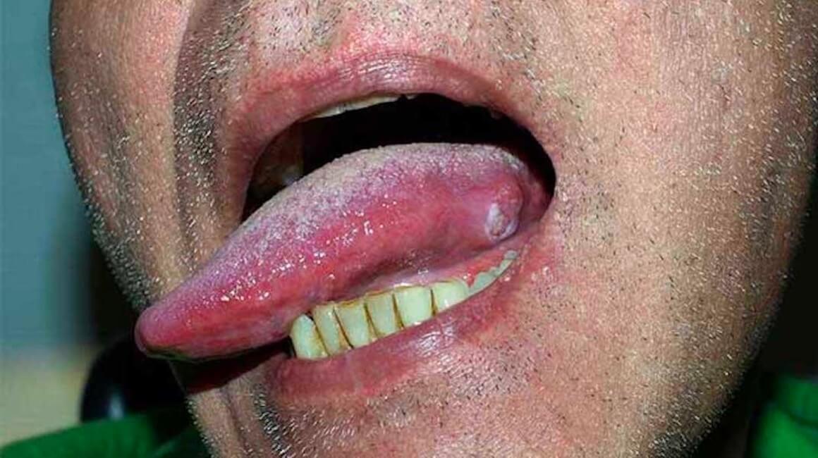 Rak jezika