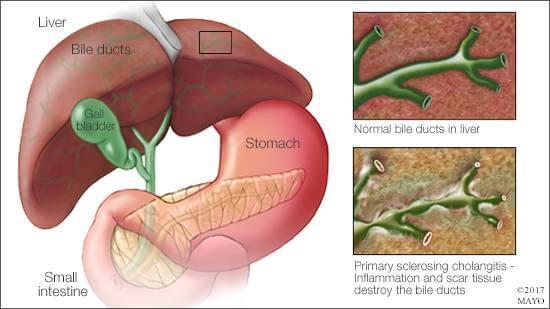 Primarni sklerozirajući kolangitis
