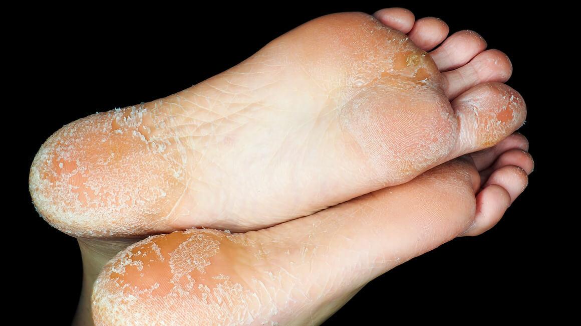 mrtva koža na stopalima