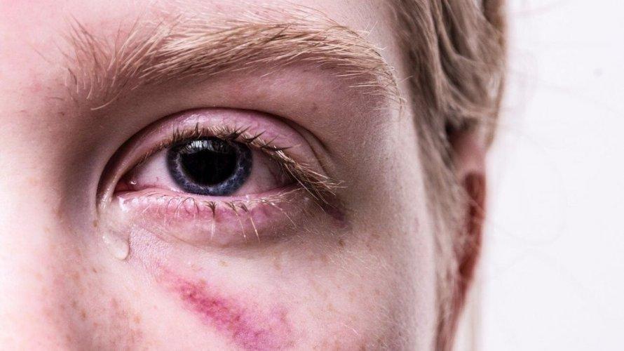 Podljev ispod oka
