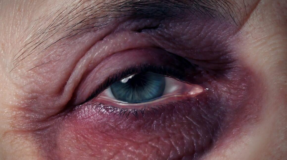 Podljevi ispod oka