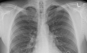 Akutni respiratorni distres sindrom