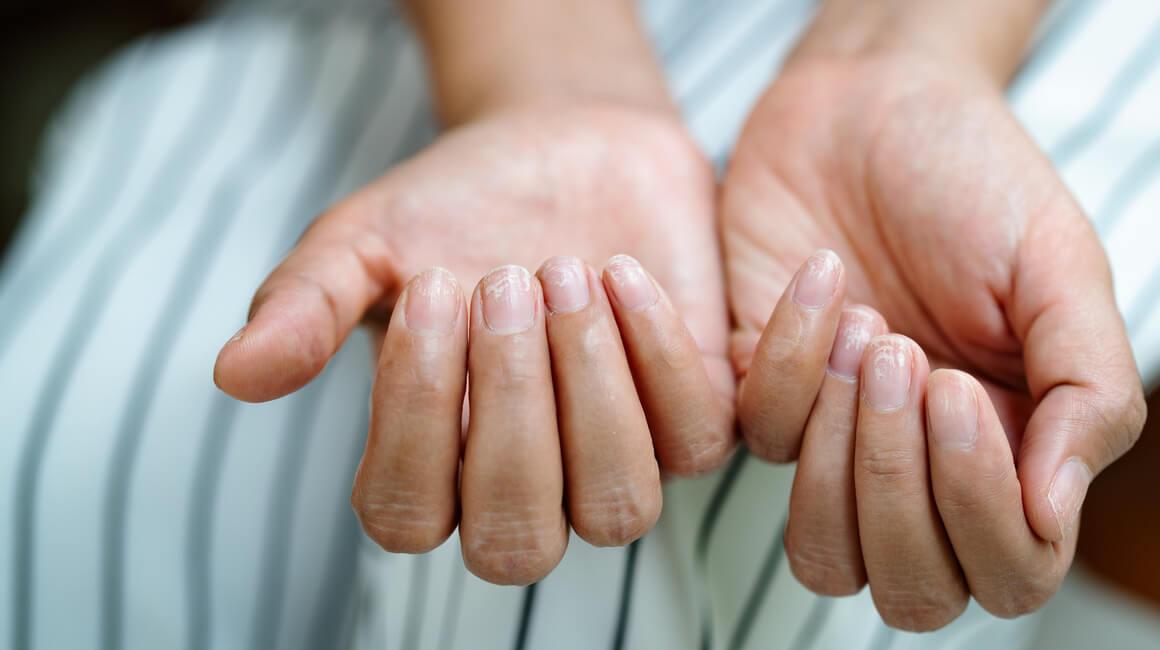 oštećeni nokti