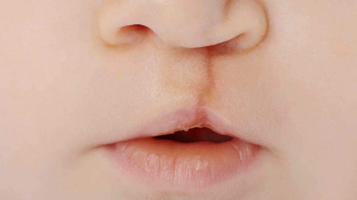 Rascjep usne