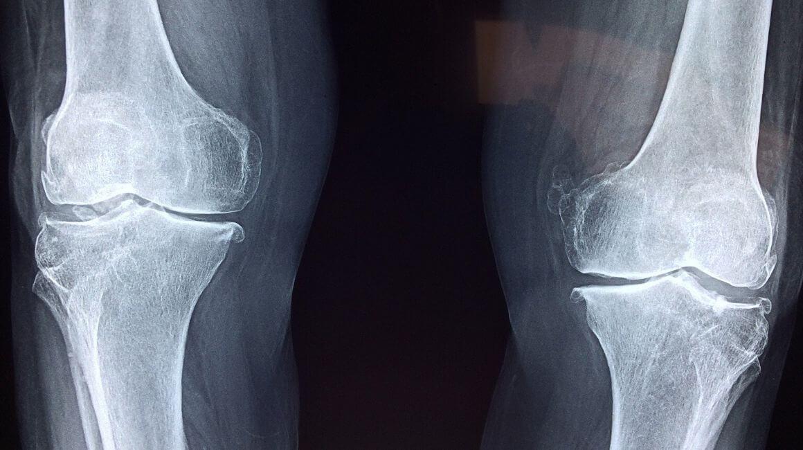 Rendgen koljena
