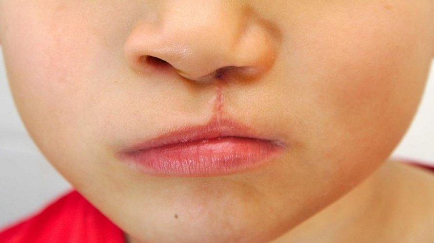 Zečja usna