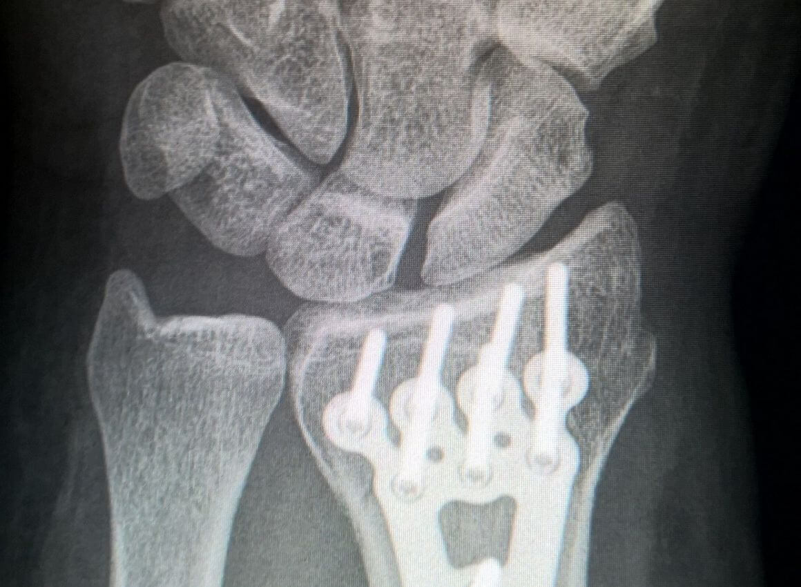 Lom palčane kosti
