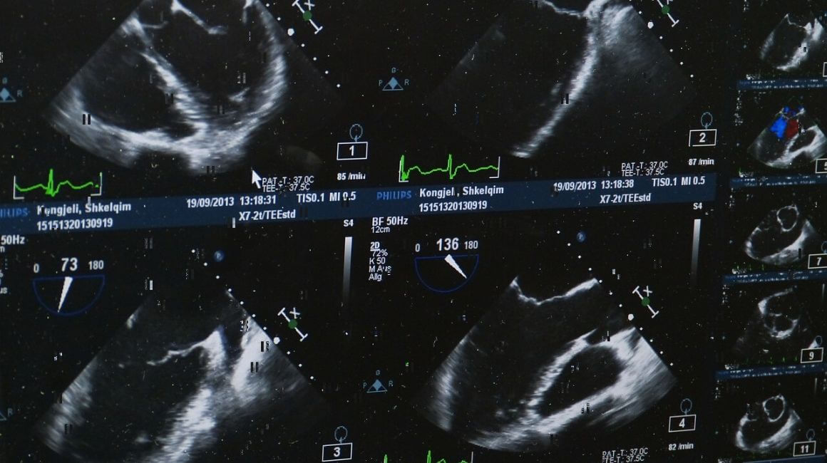 Ultrazvuk dojke
