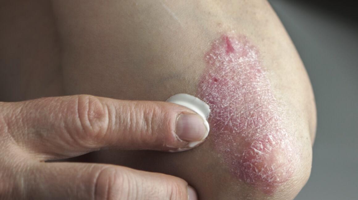 Psorijaza koža