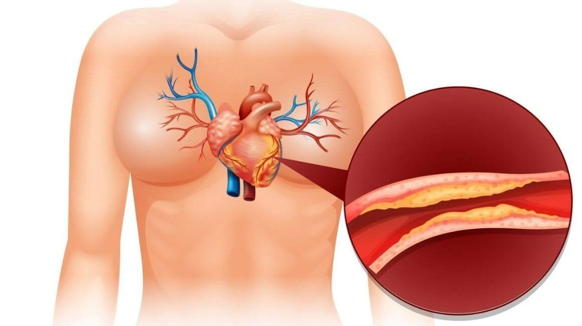 Kolesterol i bolesti