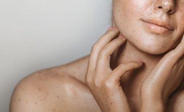 Dove - dobro se osjećati u svojoj koži