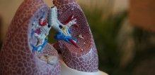 Pluća
