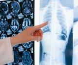 Svjetski dan raka pluća