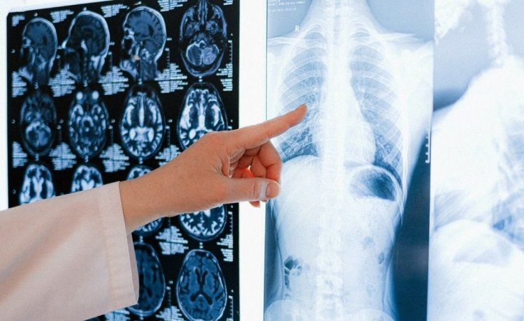 """Povodom Svjetskog dana raka pluća kreće kampanja """"Ne brini"""""""